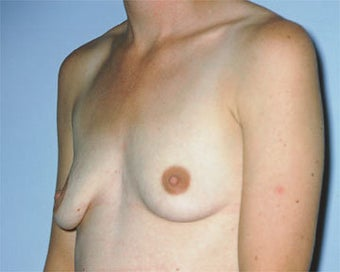 Breast Lift before 285336