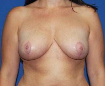 Breast reduction after 248353