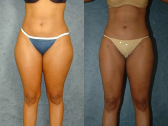 Liposuction of Abdomen, Flanks, and Thighs after 55861