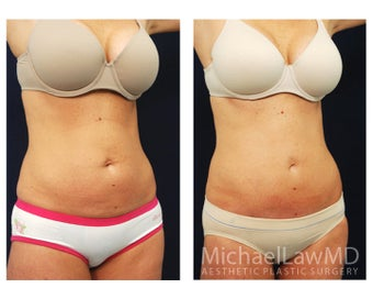 Abdominoplasty - Tummy Tuck after 396097