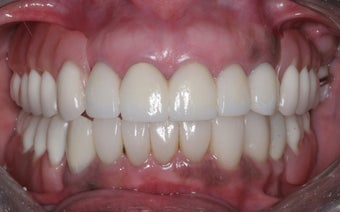Smile makeover after 372747