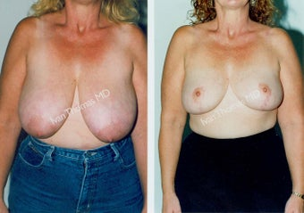 Breast Reduction before 243746
