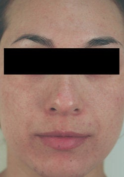 Laser Resurfacing after 89115