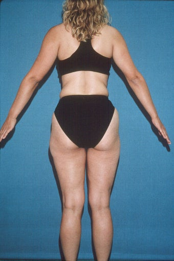 Total Body Liposculpture before 272108
