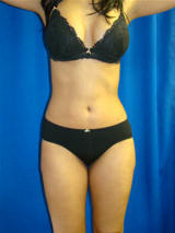 Liposuction after 119486