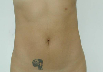 Vaser Liposuction after 229660