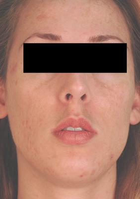 Laser Acne Treatment after 82990