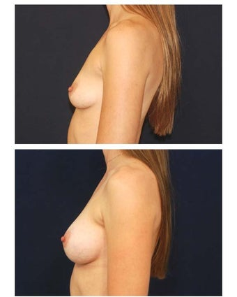 Breast augmentation with silicone breast implants before 54513