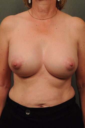 Breast Augmentation with Silicone Implants & Mastopexy after 604290