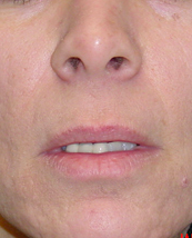 Lip Lift before 635441