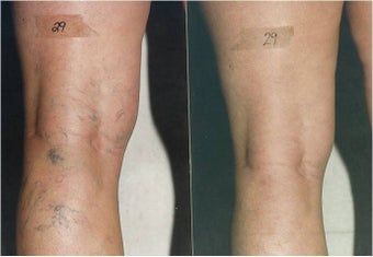 Vein Removal with Sclerotherapy before 600385