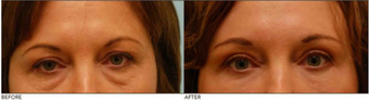 Lower & Upper Eyelid Blepharoplasty, Browlift, Fat Transfer before 138716