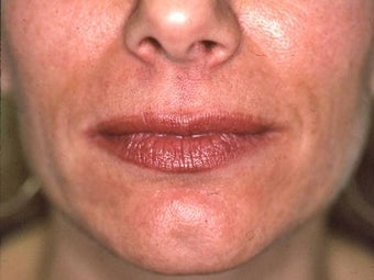 Lip Augmentation with Liquid Injectable Silicone before 157591