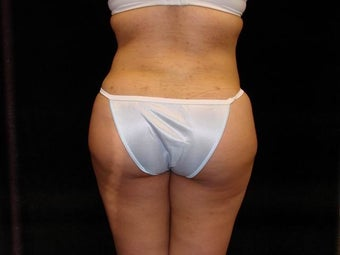 Buttocks Augmentation after 517511