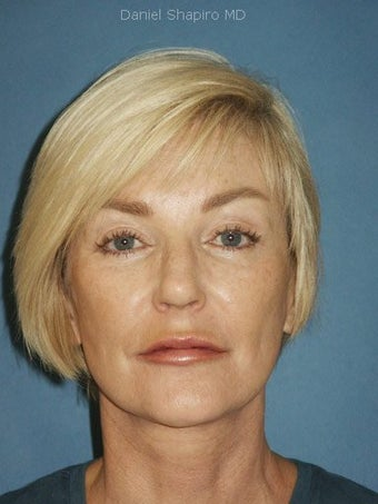 Facelift, Endoscopic Browlift, Upper and Lower Blepharoplasty, Lip Augmentation with Fat injections after 248853