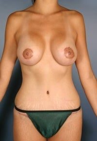 Mommy Makeover, Breast Augmentation, Breast Lift, Tummy Tuck  after 382289