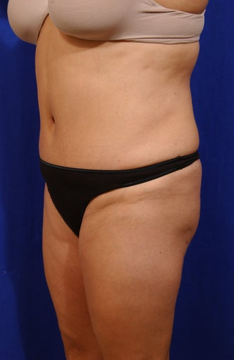Abdominoplasty with liposculpture of abs, flanks, and waist after 82417
