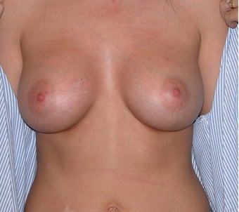 Breast Augmentation after 296010