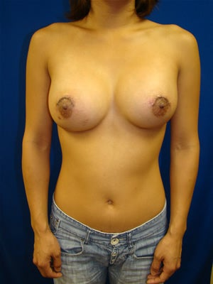Revisionary Breast Surgery after 110888