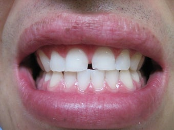 Zoom Teeth Whitening after 555740