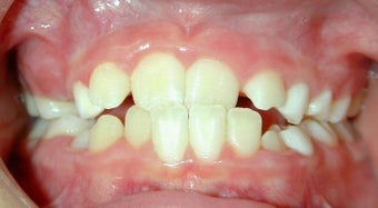 Teen Orthodontic Treatment (case #1AD) before 224689