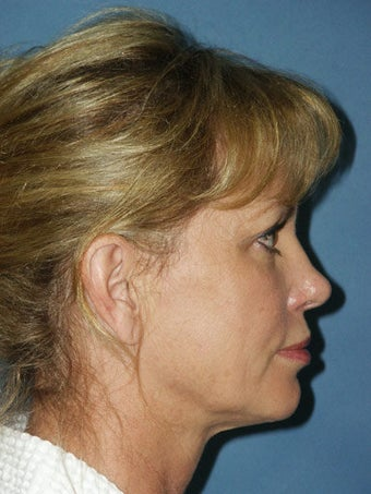 Facelift, Endoscopic Browlift, Chemical Peel to the Lower Eyelids before 248886