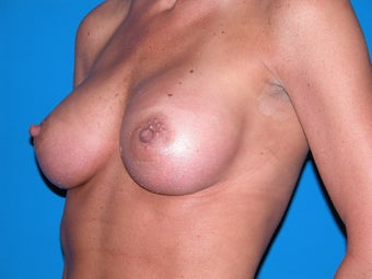 Breast Augmentation after 235342