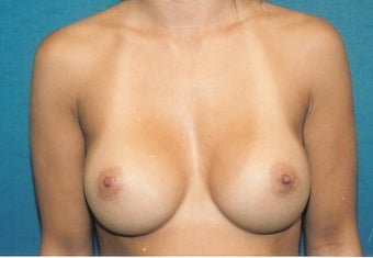Breast Augmentation after 260798