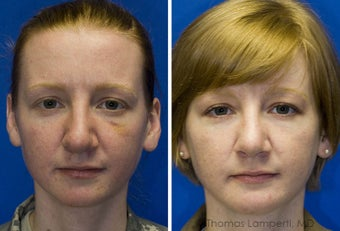 Revision Rhinoplasty, Chin Implantation, Mole Excision before 234398