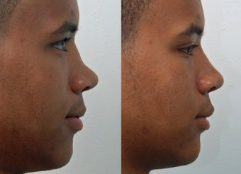 Rhinoplasty before 225886