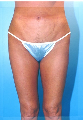 liposuction of thighs for women 583572