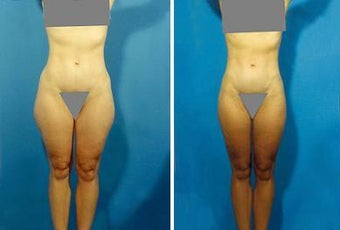Liposuction before 636231
