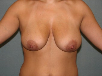 Breast lift before 508836