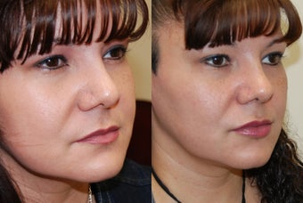 Lip Augmentation with Silikon-1000 before 351132
