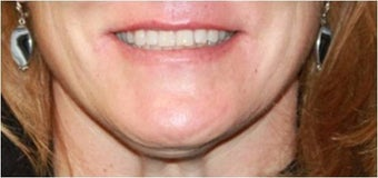Lip augmentation - juvederm 435618
