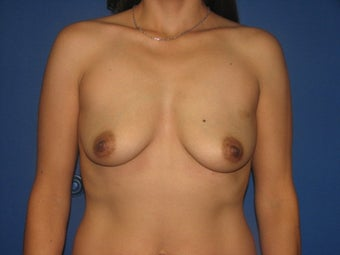 Breast Augmentation before 575286