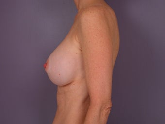 Breast Revision before 307214