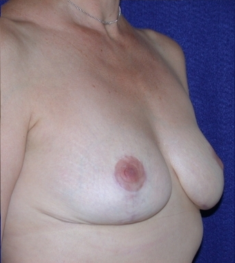 Breast Reduction after 213157