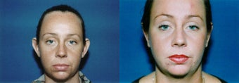 Otoplasty before 633526