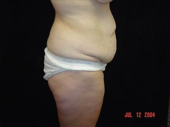 Body Lift with Liposuction of Abdomen, Waist, and Flanks before 203461