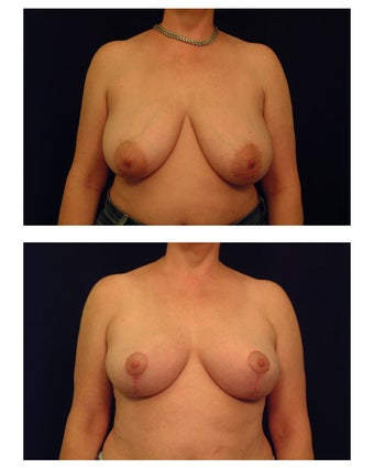 Breast Lift / Mastopexy before 286978
