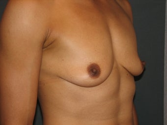 Bilateral Breast Augmentation with Silicone Gel Implants 472900