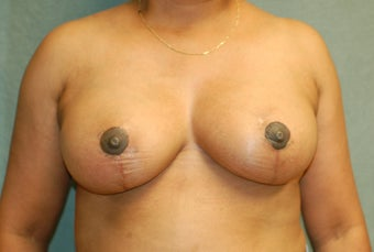 Vertical Scar Breast Reduction after 274546