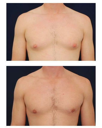 Gynecomastia before 349235