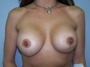 Breast implant exchange with pocket revision