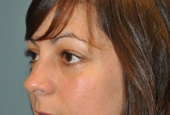 Lower Blepharoplasty after 468086