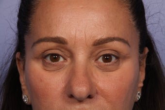 Eyelid Surgery  after 306424