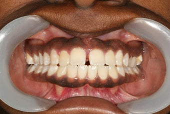 Invisalign before 416804