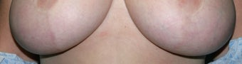Laser treatment for breast implant scars after 376107