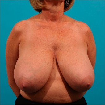Breast Reduction before 55105